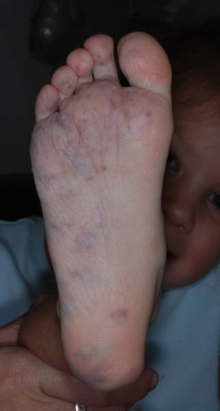 infantile hemangioma treatment with surgery or steroids
