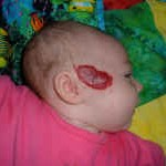 Infant with facial hemangioma